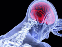 High Impact Articles on Traumatic Intracranial Hypertension