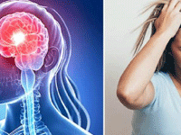 Research Contributions on Idiopathic Intracranial Hypertension