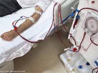 Popular Hemodialysis Articles