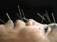 Online Databases on Acupuncture